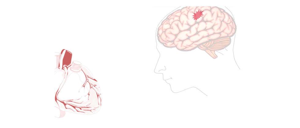 """""""Acidente Vascular Cerebral"""""""